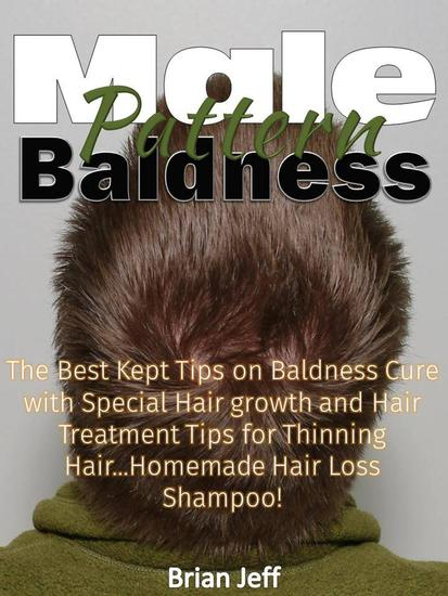Male Pattern Baldness: The Best Kept Tips on Baldness Cure with Special Hair growth and Hair Treatment Tips for Thinning HairHomemade Hair Loss Shampoo! - cover