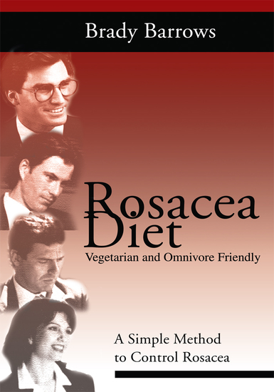 Rosacea Diet - A Simple Method to Control Rosacea - cover