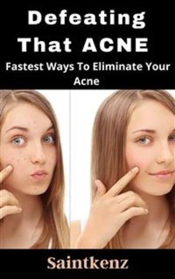 Defeating That Acne - The fastest ways to eliminate that stubborn acne - cover