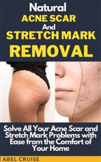 Natural Eraser for Stretch Marks and Acne - cover