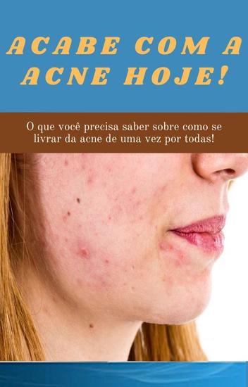 Acabe com a acne hoje! - cover