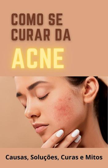Como se curar da Acne - Causa Solucoes Curas e Mitos - cover