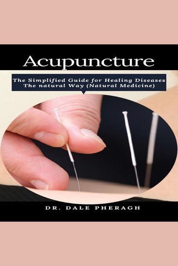 Acupuncture: The Simplified Guide for Healing Diseases The natural Way (Natural Medicine) - cover